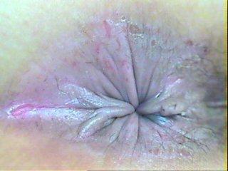福州肛门医博暖心肛门湿疹用什么药膏?